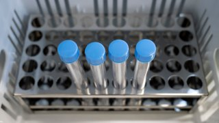 File photo of coronavirus tests.