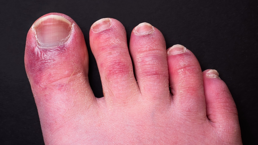 """File photo of a man's foot with a rash on the toes, a common side effect of coronavirus, known as """"COVID toes."""""""