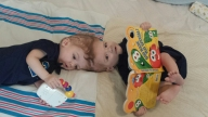 Mother of Once-Conjoined Twins Posts Facebook Video of Boys
