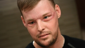 Man Gets Mayo Clinic's First Face Transplant