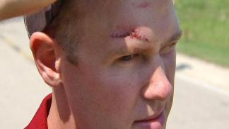 Victim Describes Bike Path Beating