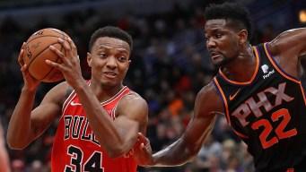 Bulls Say Carter Jr. Suffered Thumb Injury