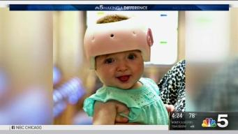 Special Helmets Improve the Lives of Babies in Chicago