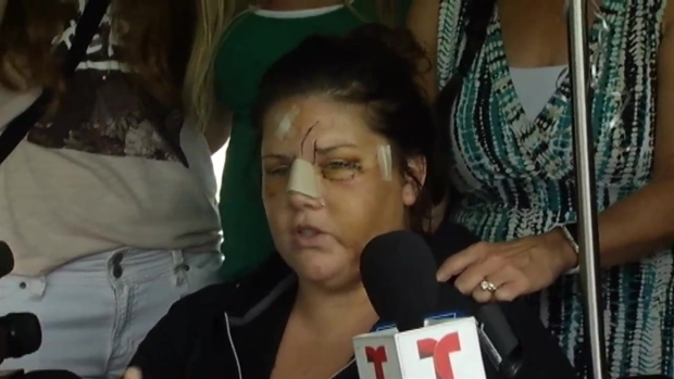 'I Defeated Him': Victim of Willowbrook Attack Speaks Out