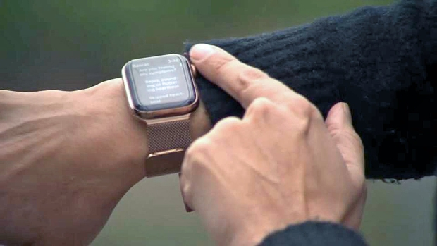 [CHI] Apple Watch Proves a Useful Tool for Doctors
