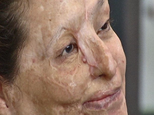 [CHI] Acid Attack Victim: Emotionally I'm Fine, But Still Hurt