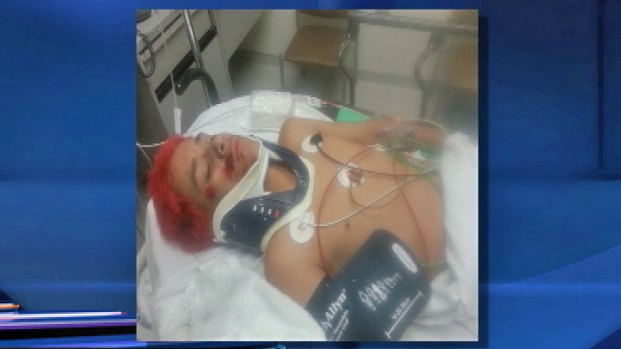 [CHI] Aurora Boy Seriously Injured in Hit-and-Run Crash