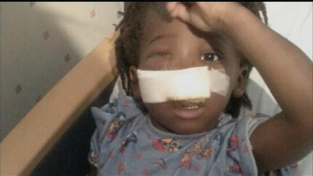 [CHI] Mother of Shot Toddler Discusses Boy's Recovery