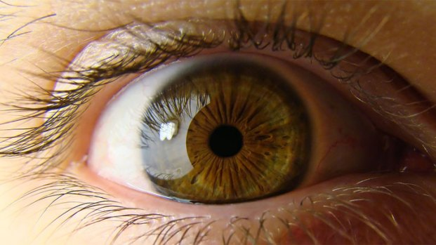 [CHI] Surgery Could Restore Woman's Sight