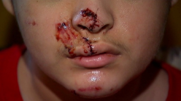 [CHI] Boy And Girl Attacked by Pit Bull on West Side