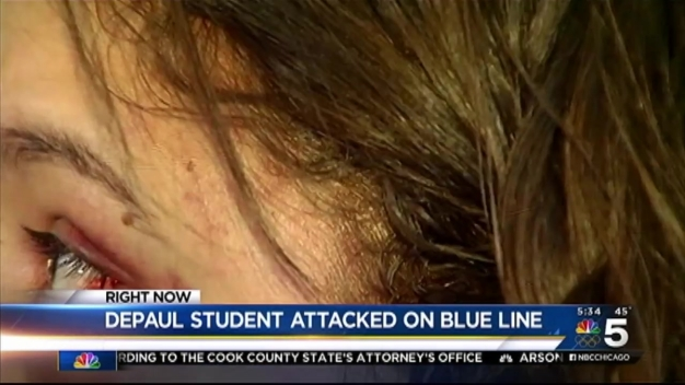 College Student Attacked on Blue Line