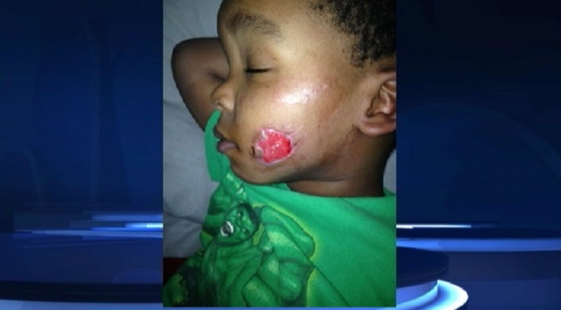 [CHI] Boy Recovering After Possible Coyote Attack