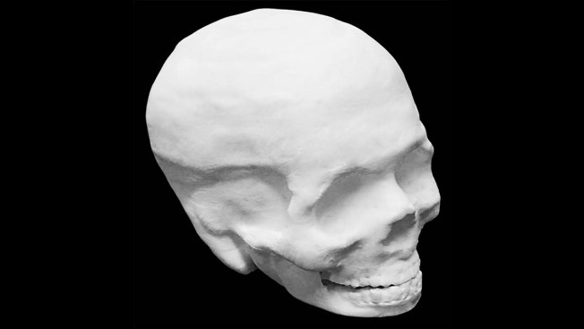 3D-Printed Artificial Bones Could Help Heal Skull, Spine Injuries
