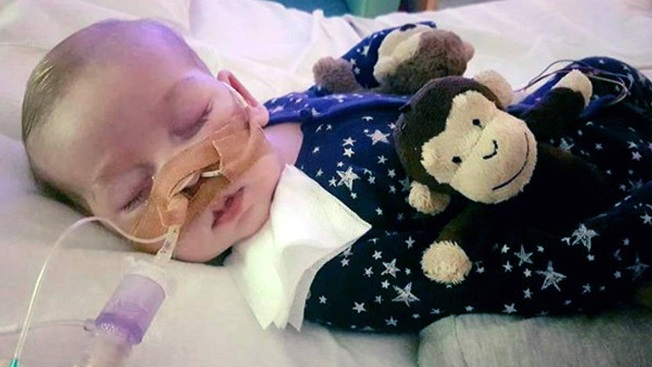 Courts Take Away Parents Rights to Treat Terminally Ill Child