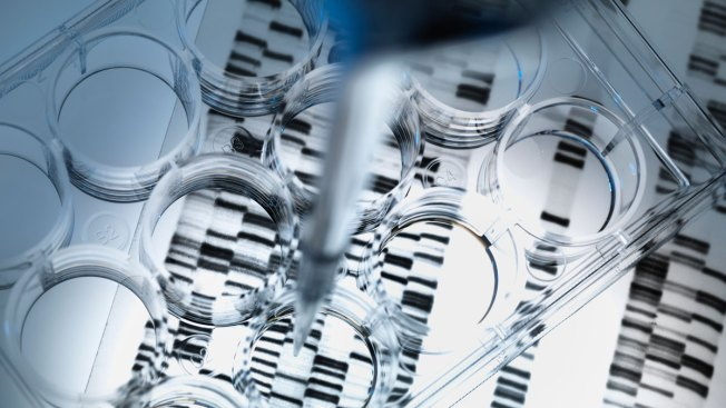 Ancient Virus in DNA May Cause ALS: Study