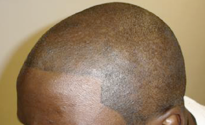 Going Bald? Get Your Head Tattooed