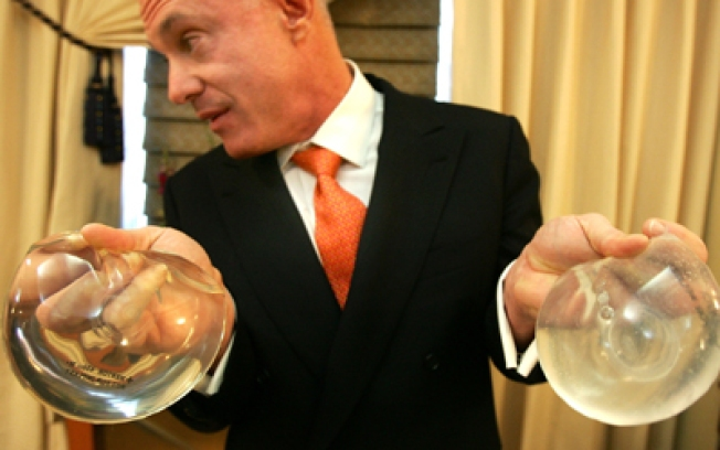 Man Tries to Reclaim Ex's Breast Implants