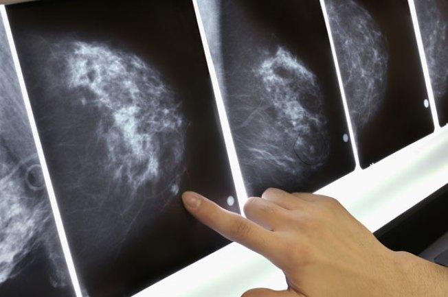 Baffled by Breast Cancer Screening Advice?
