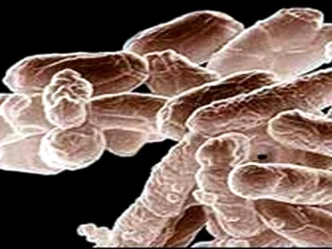 "Drug-resistant ""Superbug"" Found in Illinois"