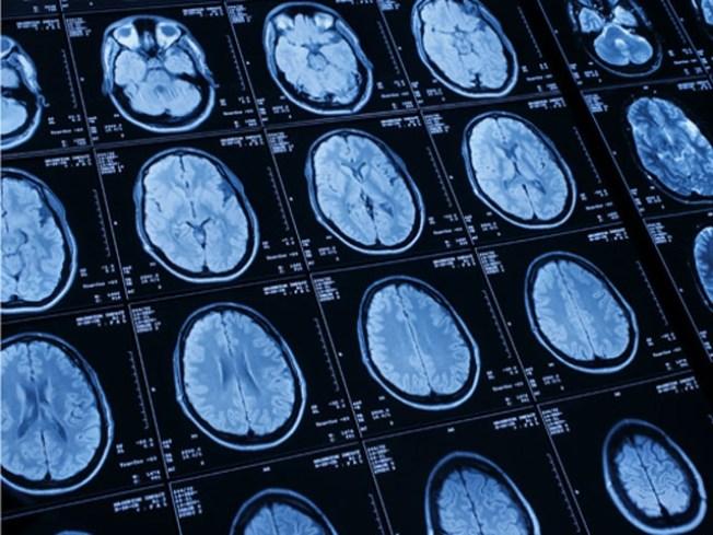 Virtual Biopsies Could Help Diagnose Brain Trauma