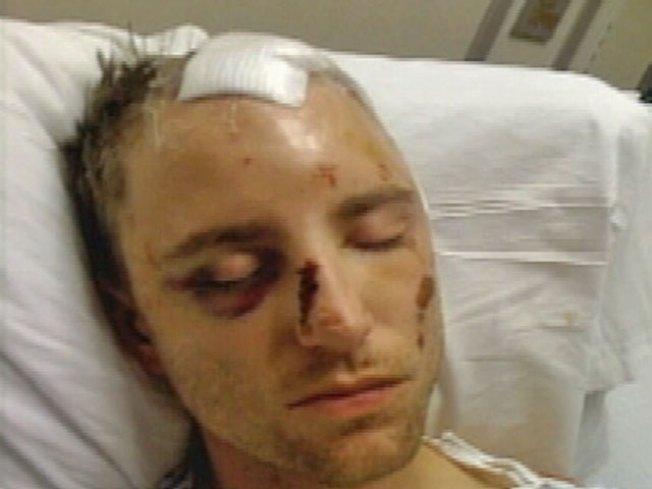 Madina Lake Bassist Hospitalized After Brutal Attack