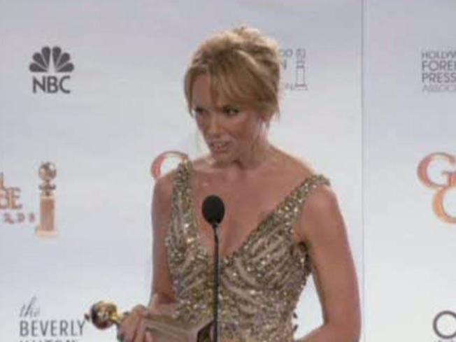 United States Of Toni Collette Takes Best Tv Actress Comedy Nbc