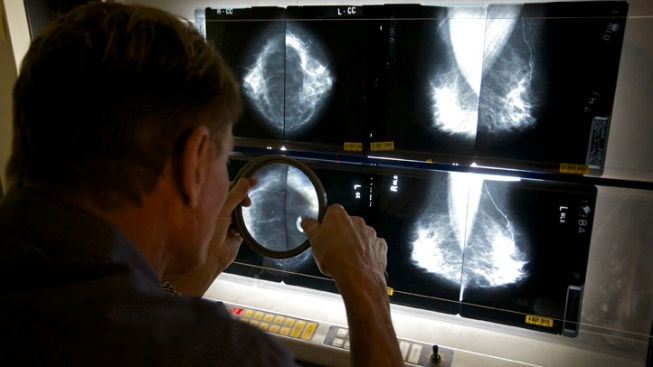 Cancer Care Is in Crisis in U.S.: Gov't Report