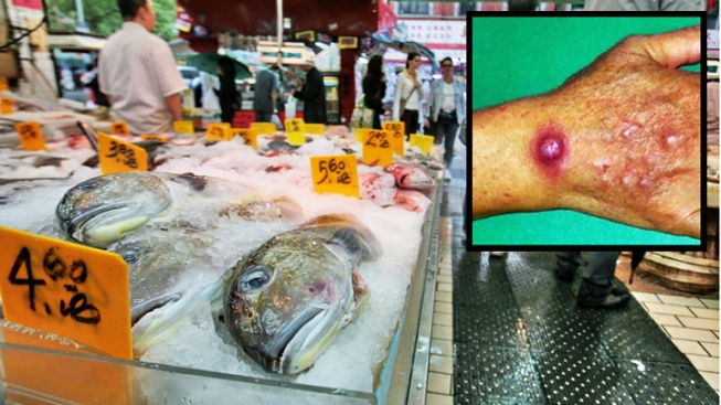 NYC Chinatown Skin Infection Outbreak Spreads