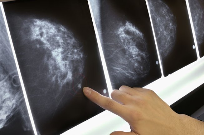 New Breast Cancer Recommendation Baffles Women